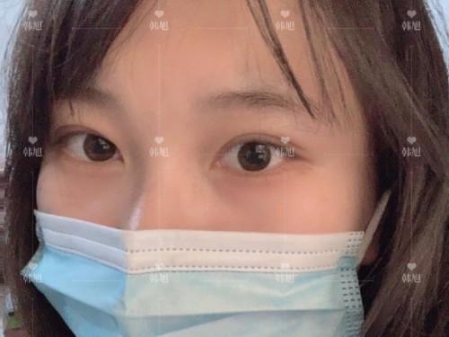 肿眼泡形成的原因有哪些呢?—韩旭贝塞尔双眼皮