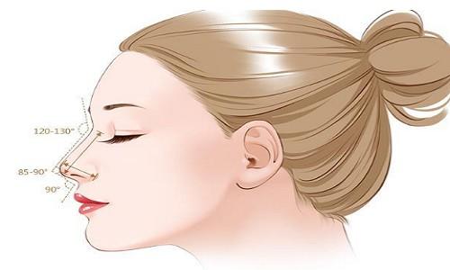 鼻整形可不可以不放假体只做软骨鼻尖整形?