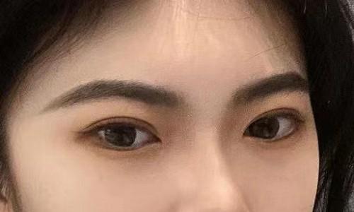 双眼皮手术能矫正眼皮下垂?